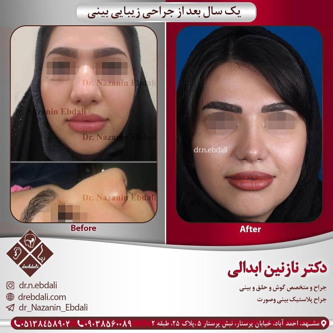 نمونه کار جراحی بینی 1